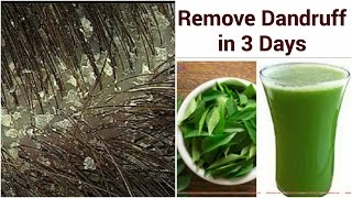 Remove DANDRUFF PERMANENTLY IN 3 DAYS NATURALLY   2 Simple Steps   GET SILKY,SHINY, SMOOTH HAIR