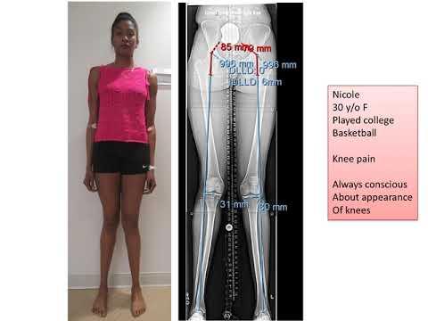 Image - Knock Knee Treatment