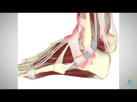 Tratamentul artrozei evdokimov