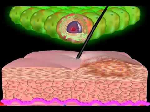 Tipuri oncogene de virus al papilomului
