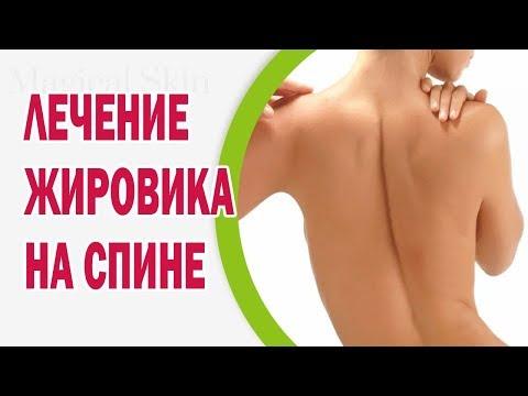 Золотой ус средство от боли в суставах