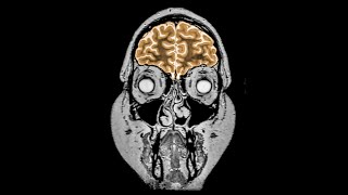 A Mom Drank 3 Gallons Water In 2 Hours. This is What Happened to Her Brain.