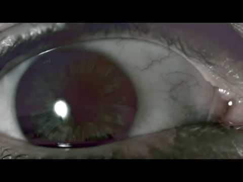 E - t a lgg lyambliya unintestazione - Come la larva di occhiate di vermi