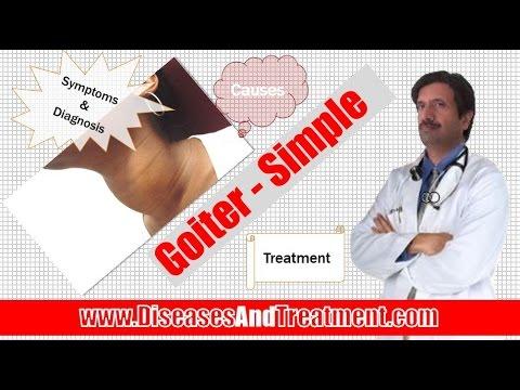 Video Goiter : causes, symptoms, diagnosis, treatment, complications, risk factors, prevention