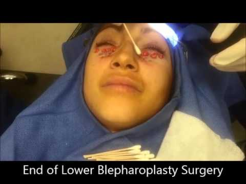 Lower Blepharoplasty for Dark Circle Reduction, Eye Bag Removal, and Better Eyelid Appearance