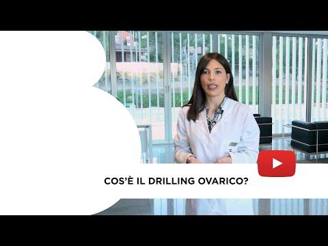 Cos'è il Drilling Ovarico?