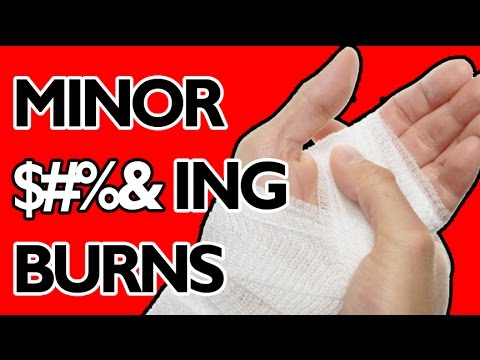 Video How to Treat Minor Burns