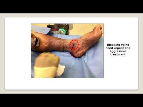 Cât de mult se vindecă operațiunea varicoză