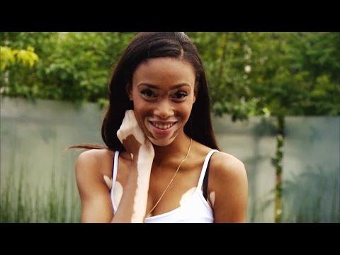 Model With Vitiligo Winnie Harlow Is Beating The Odds And Shining
