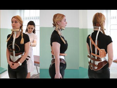 Die Kyphose des Halses die Behandlung