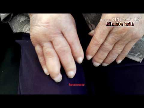 Artrózis kezelése a fenyveserdőben