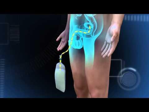 La pompe vidée pour laugmentation du membre linstruction