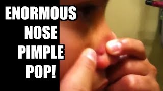 Popping Bigger Nose Pimple, Part 2 (Case Study - How Pros Pop Pimples)