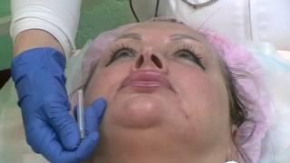 Инъекционные экспресс процедуры от Бариновой Елены