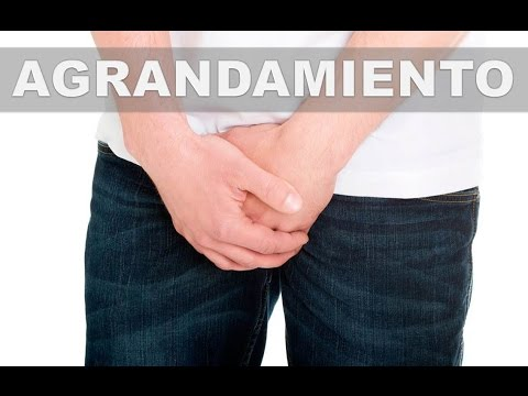 Glándula de la próstata disminuido de tamaño