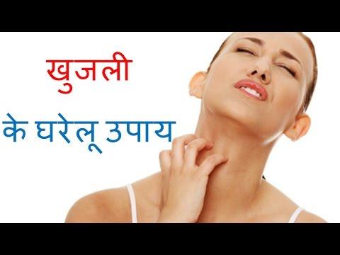खुजली से निपटने के घरेलू उपाय | Home Remedy for Itching in Hindi