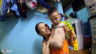 Cậu bé có tim, ruột nằm ngoài bụng đang bồi bổ chuẩn bị đi mổ   Phong Bụi