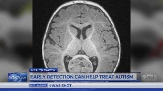 Dr. Campbell: Early Detection can help treat Autism in Babies