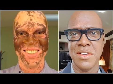 Die Maske mit der Gelatine für das Bleichen der Haut