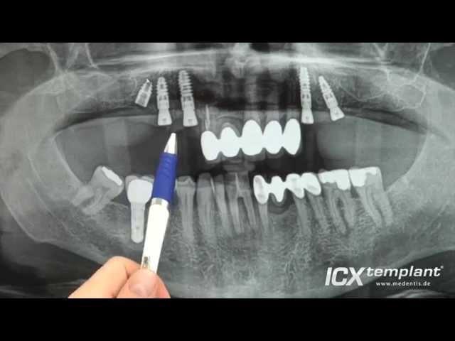 Fünf ICX-templant® Implantate bei einer beidseitigen Freienssituation im Oberkiefer