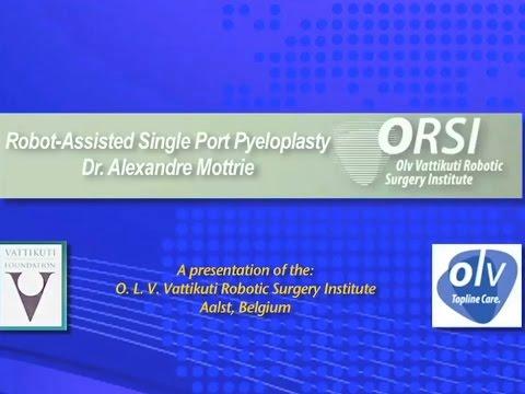 Robot-Assisted Single Port Pyeloplasty