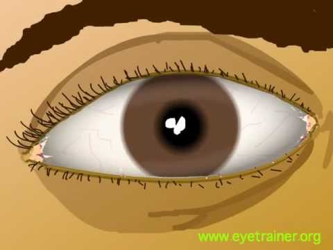 Keratoconus oftalmologie din Munchen