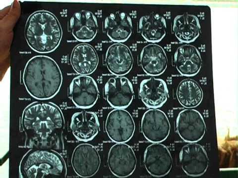 заговоры и молитвы от рассеянного склероза