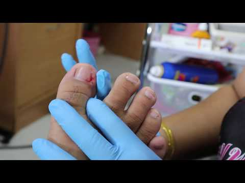 Ep_2840 Foot nails skin removal 👣 1 2 3 ไม่เจ็บ 😷 (This clip is from Thailand)