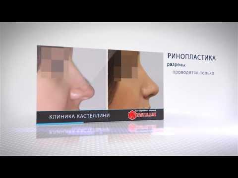 Ринопластика - это исправление врождённых или приобретённых деформаций носа.