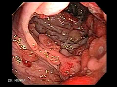 Colonoscopy of Juvenile Polyposis