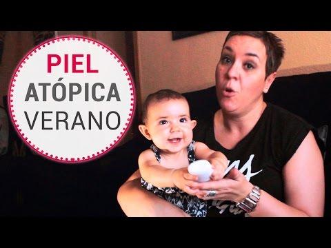 El tratamiento de la psoriasis a los niños de la clínica