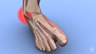 Mayo Clinic Minute: Ankle sprains 101