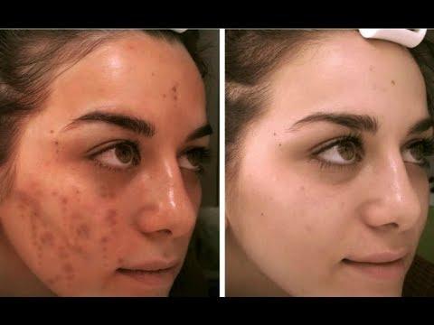 Pagtatalaga ng pigment spots