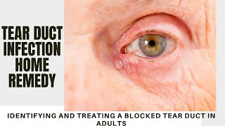 tear duct infection home remedy | Identifying and Treating a Blocked Tear Duct in Adults