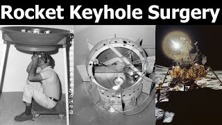 How NASA's Apollo 14 Fixed A Critical Problem Using 'Keyhole Rocket Surgery'