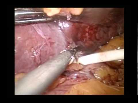 A case of laparoscopic gastric band removal and sleeve gastrectomy