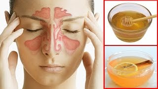 How To Get Rid of a Sinus Headache Fast | Sinus Pressure Relief
