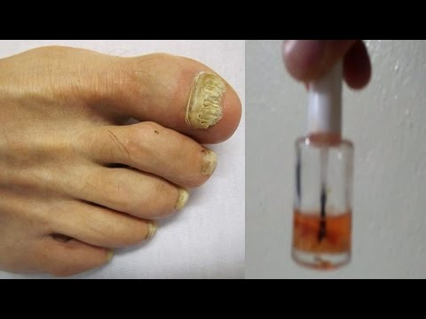 La enfermedad de las uñas paronihiya el tratamiento