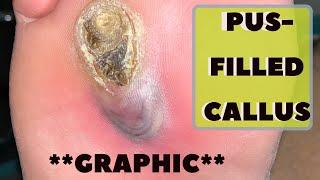 PUS-FILLED CALLUS | DIABETIC FOOT INFECTION