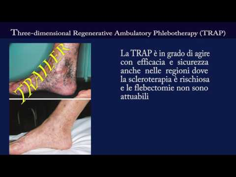 Marijuana a thrombophlebitis