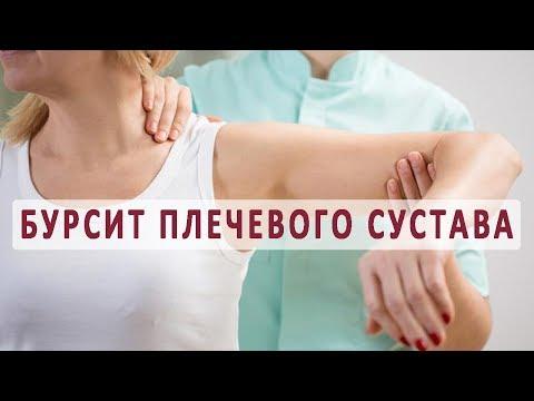 Что нужно знать о бурсите плечевого сустава