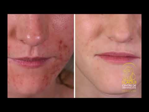 Lapplication asd au traitement du psoriasis