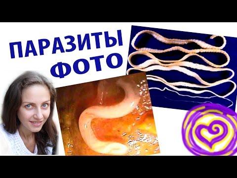 Диагностика паразитов у человека красноярск