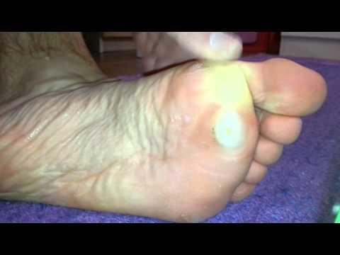 Forum remedii parazite