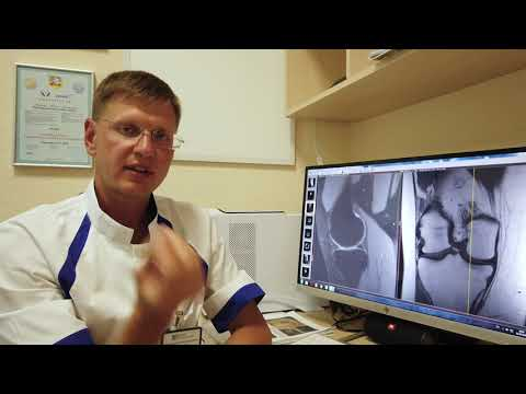 Что лучше МРТ, КТ, УЗИ, рентген для исследования суставов?
