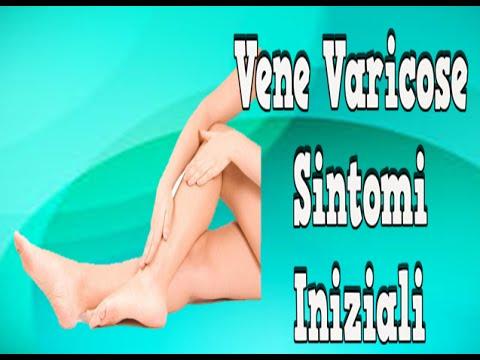Placche su varicosity di vene