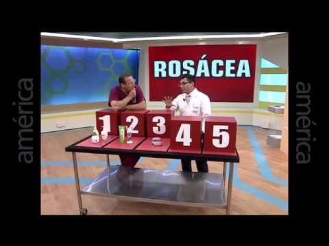 Rosácea: Que hacer para atenuar la rosácea y cuidar la piel entrevista en Dr. Tv al Dr. Aparcana