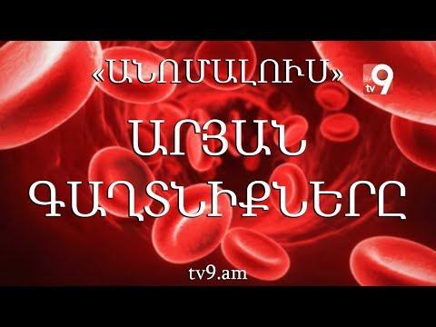 Արյան գաղտնիքները. «Անոմալուս» Կարեն Եմենջյանի հետ