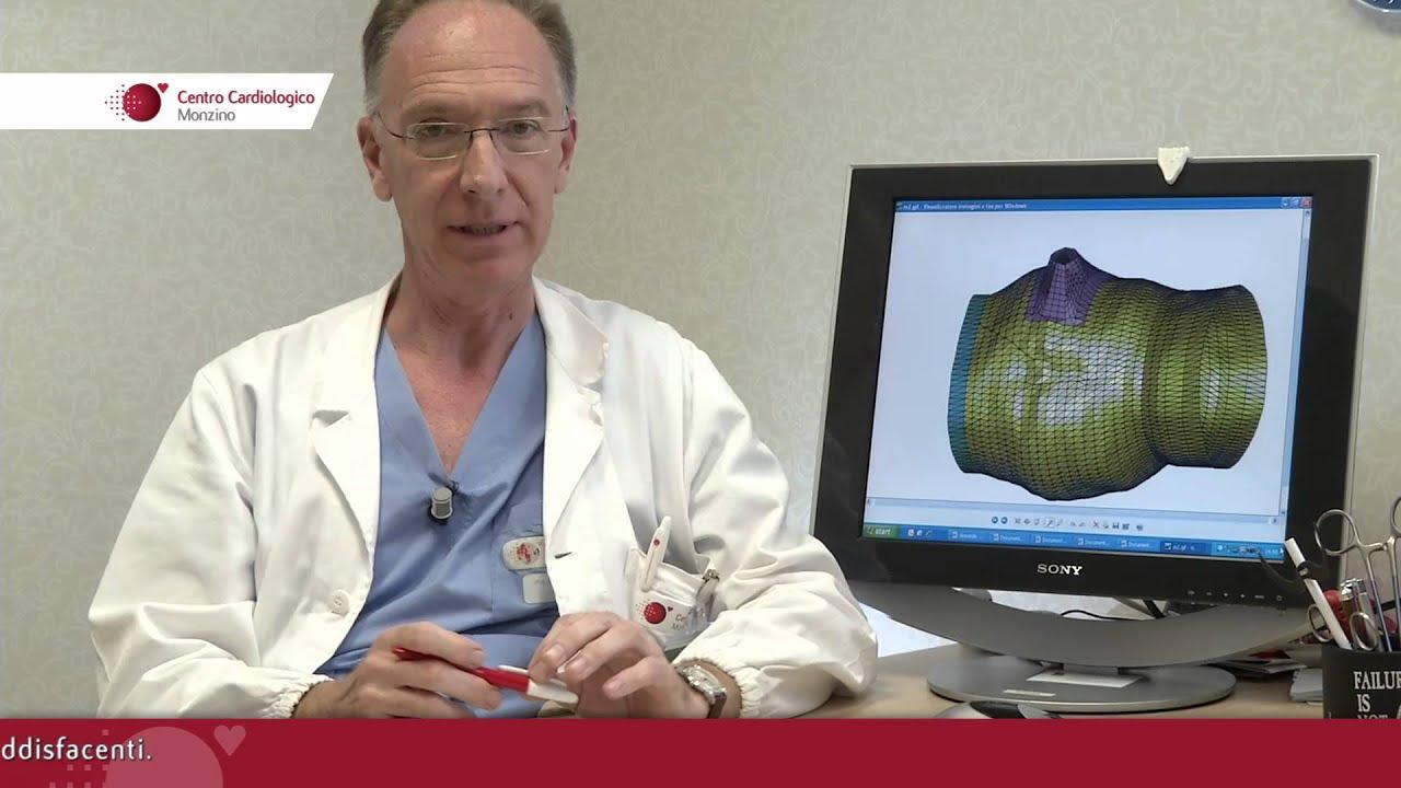 Intervista Prof. Gianluca Polvani, Responsabile UO Cardiochirurgia 2 del Monzino - 1