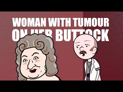 Woman With Tumour On Her Butt